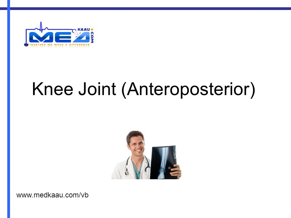 Knee Joint (Anteroposterior) www.medkaau.com/vb