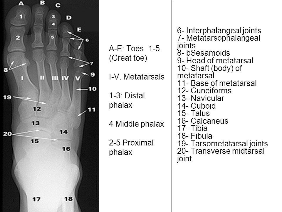 A-E: Toes 1-5. (Great toe) I-V. Metatarsals 1-3: Distal phalax 4 Middle phalax 2-5 Proximal phalax 6- Interphalangeal joints 7- Metatarsophalangeal jo