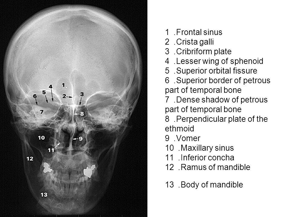 1. Frontal sinus 2. Crista galli 3. Cribriform plate 4. Lesser wing of sphenoid 5. Superior orbital fissure 6. Superior border of petrous part of temp