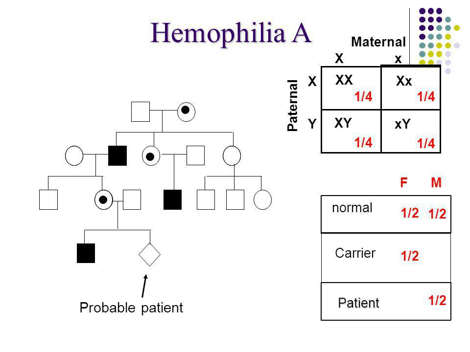 Hemophilia A Xx Maternal X Y Paternal normal XY Xx XY XX Carrier affected 1/4 1/2 F M Probable patient Patient xY