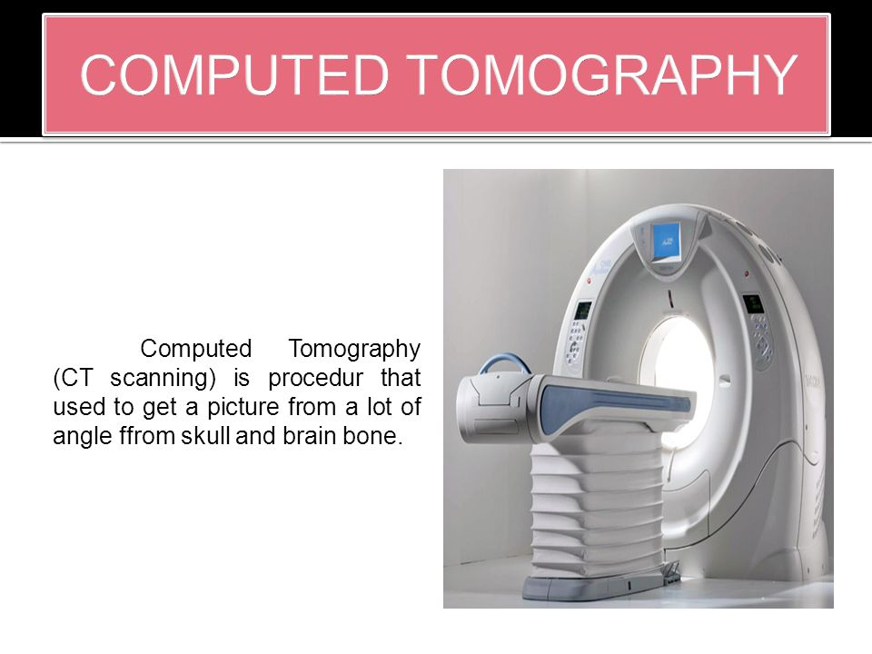 Computed Tomography (CT scanning) is procedur that used to get a picture from a lot of angle ffrom skull and brain bone.