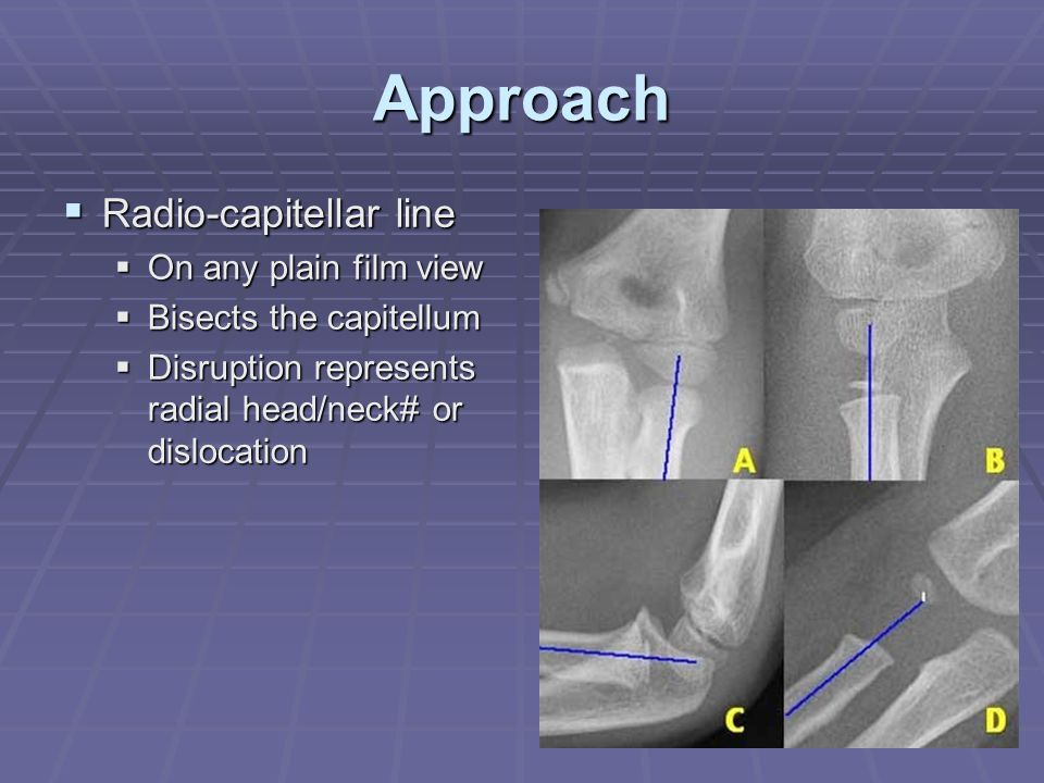 Approach  Radio-capitellar line  On any plain film view  Bisects the capitellum  Disruption represents radial head/neck# or dislocation