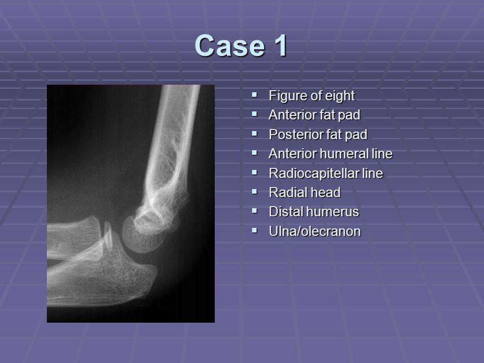 Case 1  Figure of eight  Anterior fat pad  Posterior fat pad  Anterior humeral line  Radiocapitellar line  Radial head  Distal humerus  Ulna/o
