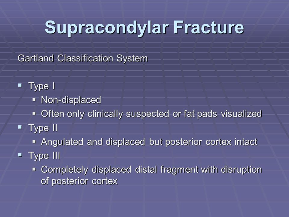 Supracondylar Fracture Gartland Classification System  Type I  Non-displaced  Often only clinically suspected or fat pads visualized  Type II  An