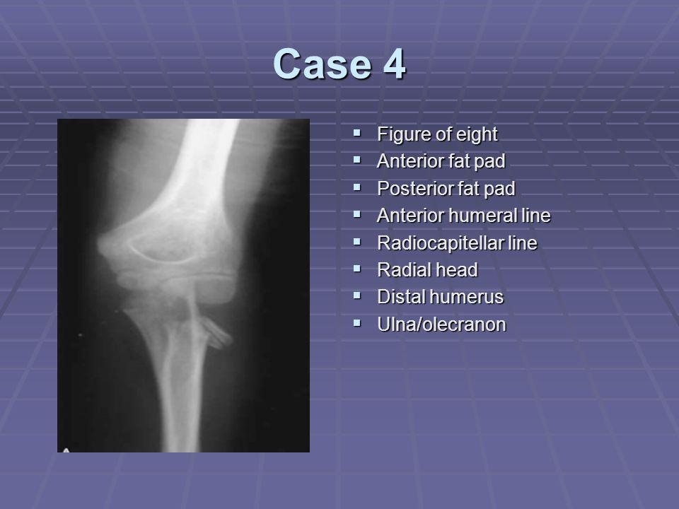 Case 4  Figure of eight  Anterior fat pad  Posterior fat pad  Anterior humeral line  Radiocapitellar line  Radial head  Distal humerus  Ulna/o