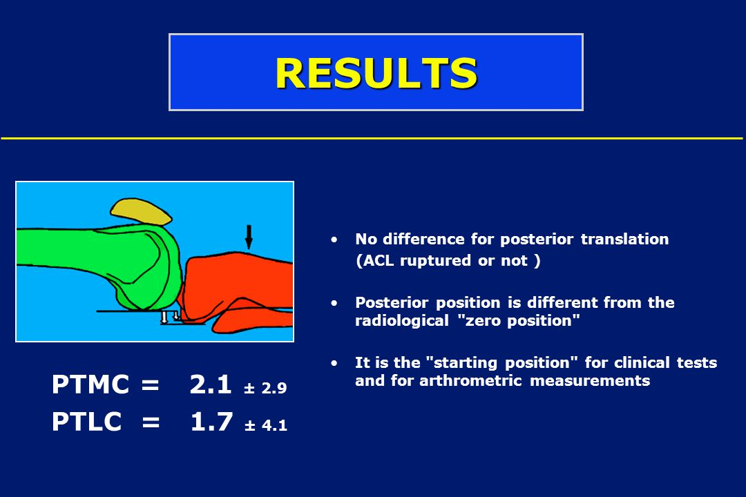No difference for posterior translation (ACL ruptured or not ) Posterior position is different from the radiological