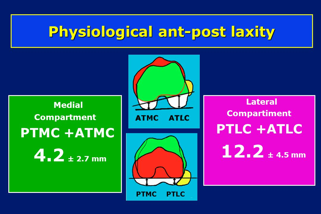 Medial Compartment PTMC +ATMC 4.2 ± 2.7 mm Physiological ant-post laxity Lateral Compartiment PTLC +ATLC 12.2 ± 4.5 mm