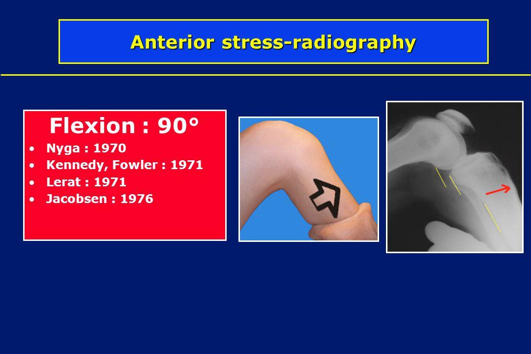 Flexion : 90° Nyga : 1970 Kennedy, Fowler : 1971 Lerat : 1971 Jacobsen : 1976 Anterior stress-radiography