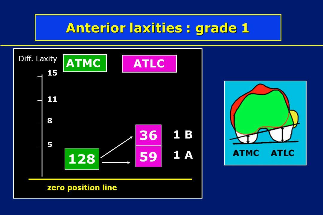 Anterior laxities : grade 1 128 36 59 5 8 11 Diff. Laxity zero position line 15 ATMC ATLC 1 D 1 C 1 B 1 A