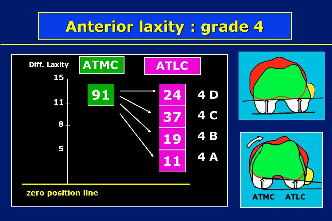 Anterior laxity : grade 4 91 19 37 24 11 5 8 Diff. Laxity zero position line 15 4 D 4 C 4 B 4 A ATLC ATMC