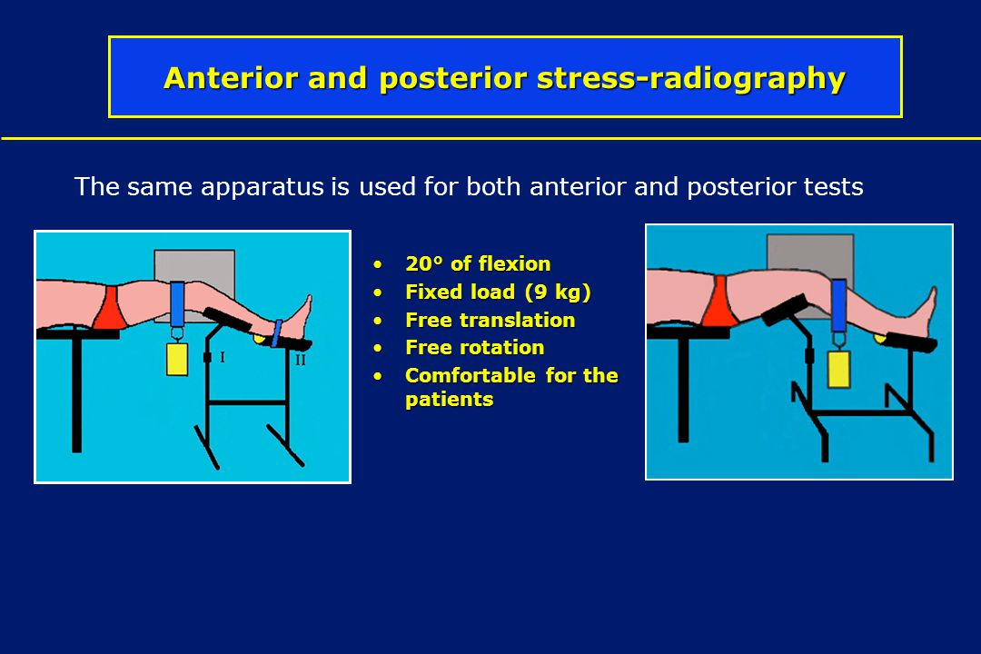 Anterior and posterior stress-radiography The same apparatus is used for both anterior and posterior tests 20° of flexion20° of flexion Fixed load (9