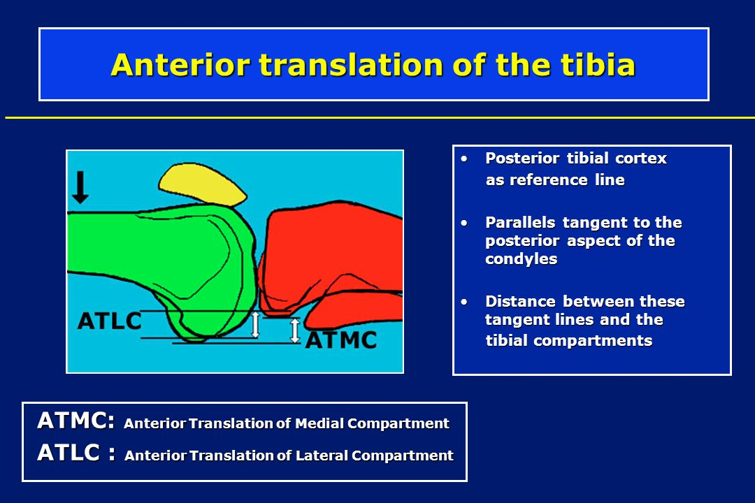Anterior translation of the tibia Posterior tibial cortexPosterior tibial cortex as reference line as reference line Parallels tangent to the posterio