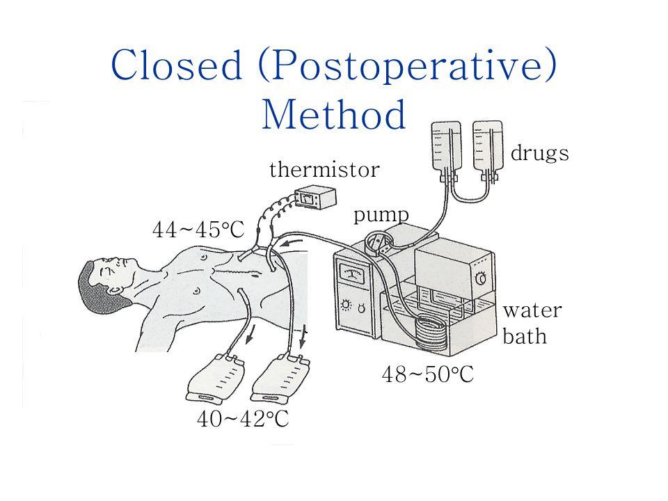 Closed (Postoperative) Method drugs thermistor 44~45  C pump 40~42  C 48~50  C water bath