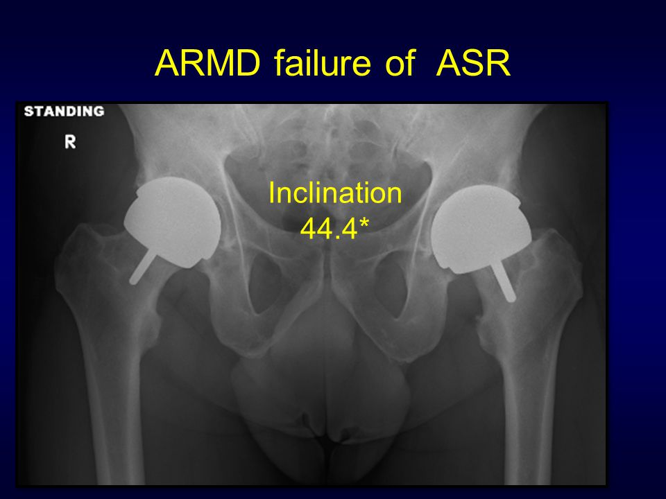 ARMD failure of ASR Inclination 44.4*