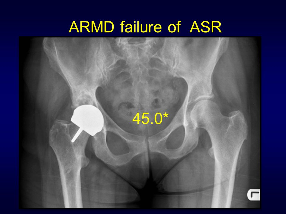 ARMD failure of ASR 45.0*