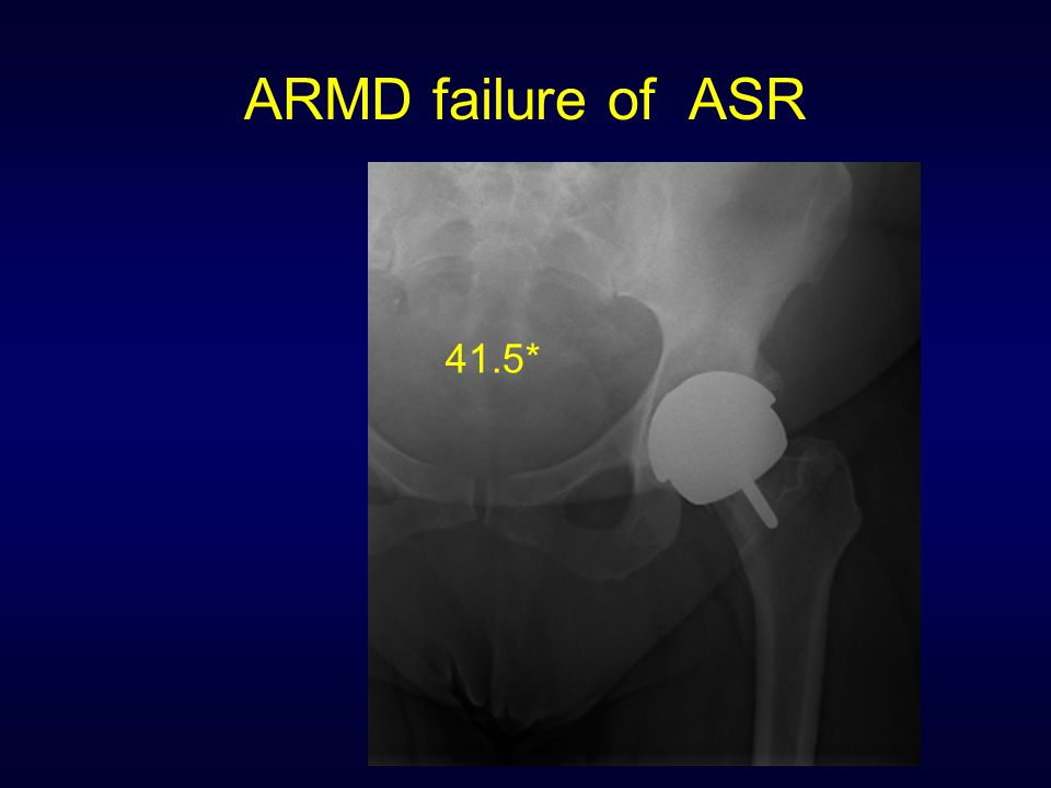 ARMD failure of ASR 41.5*