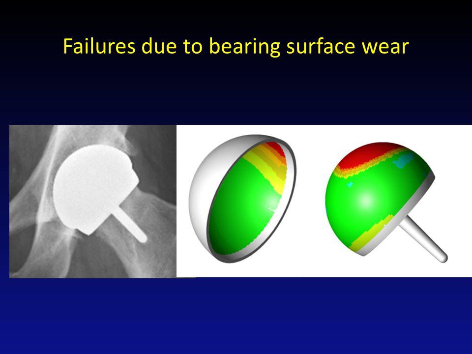 Failures due Taper failure of ASR THR