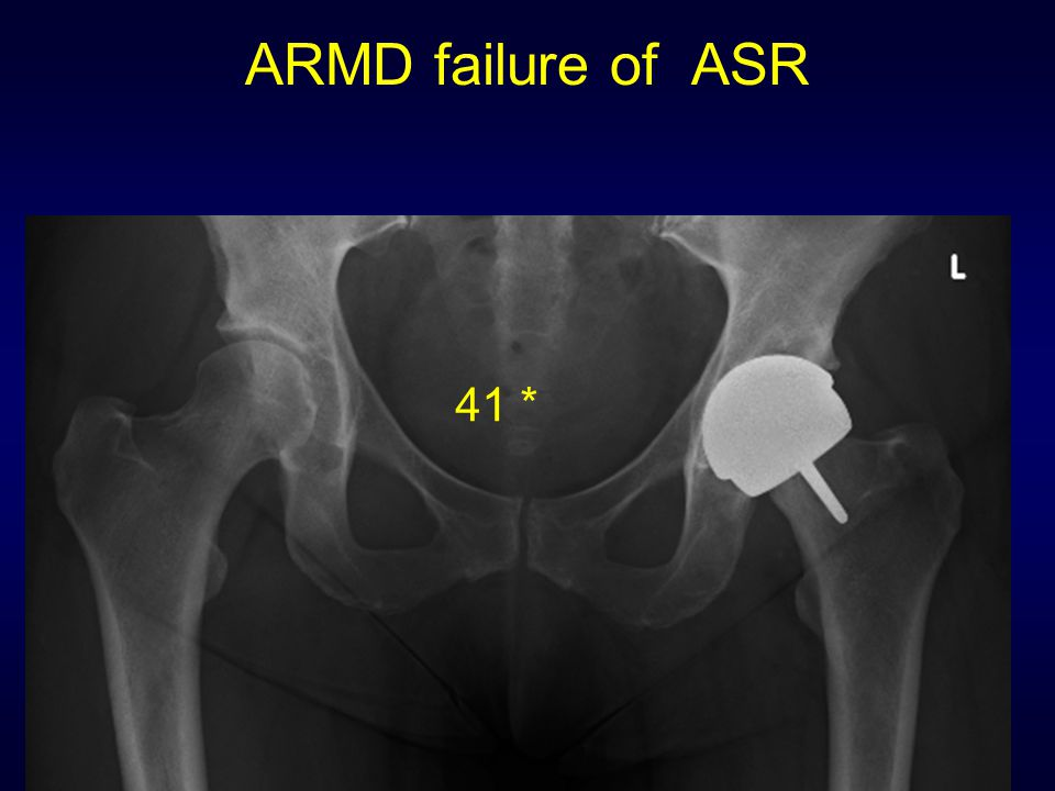ARMD failure of ASR 41 *