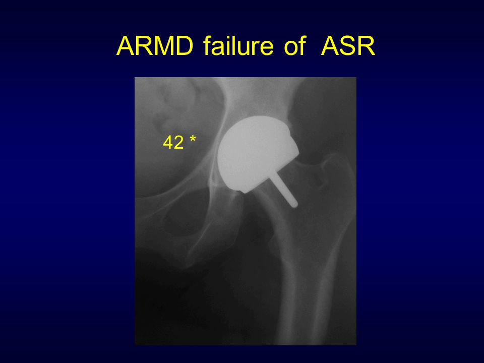 ARMD failure of ASR 42 *