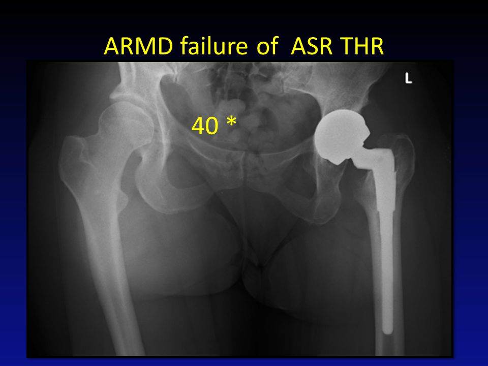ARMD failure of ASR THR 40 *