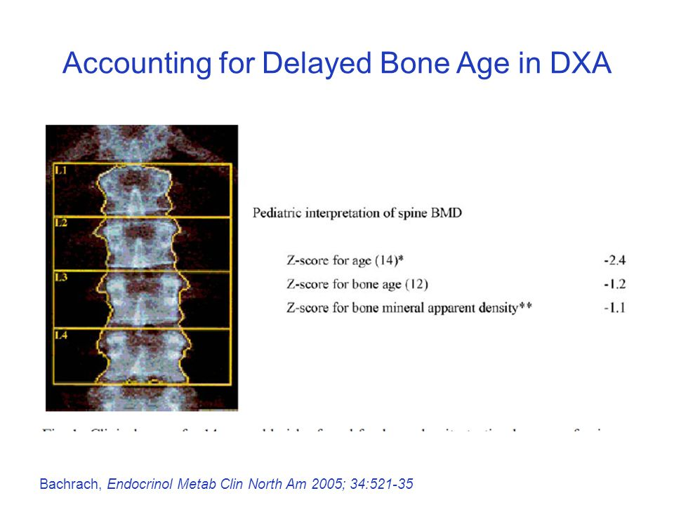 Accounting for Delayed Bone Age in DXA Bachrach, Endocrinol Metab Clin North Am 2005; 34:521-35