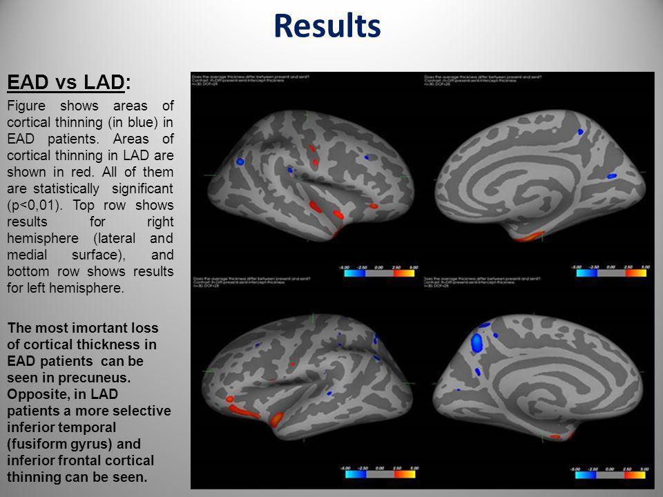 Results EAD vs LAD: Figure shows areas of cortical thinning (in blue) in EAD patients. Areas of cortical thinning in LAD are shown in red. All of them