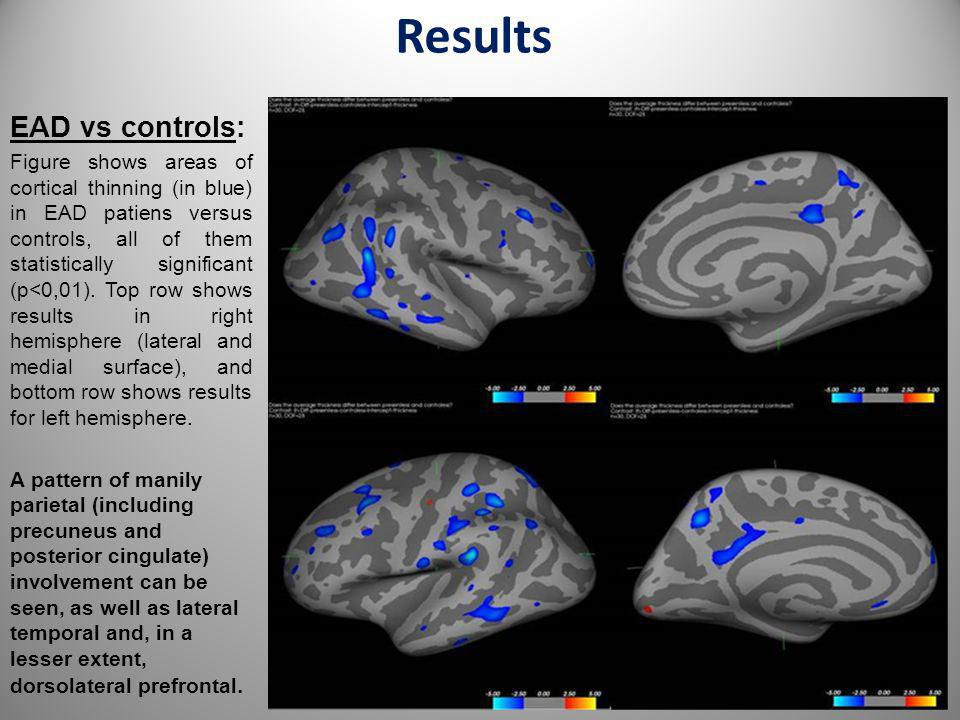 Results EAD vs controls: Figure shows areas of cortical thinning (in blue) in EAD patiens versus controls, all of them statistically significant (p<0,
