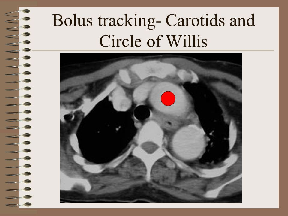 Bolus tracking- Carotids and Circle of Willis
