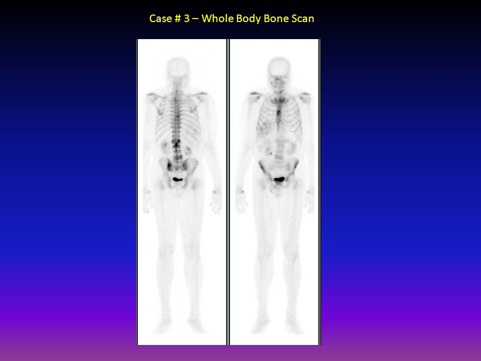 Case # 3 – Whole Body Bone Scan