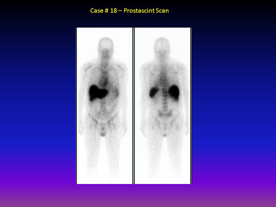 Case # 18 – Prostascint Scan