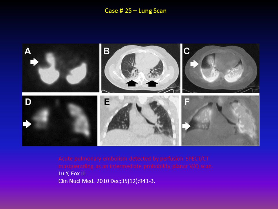 Case # 25 – Lung Scan Acute pulmonary embolism detected by perfusion SPECT/CT masquerading as an intermediate probability planar V/Q scan. Lu Y, Fox J