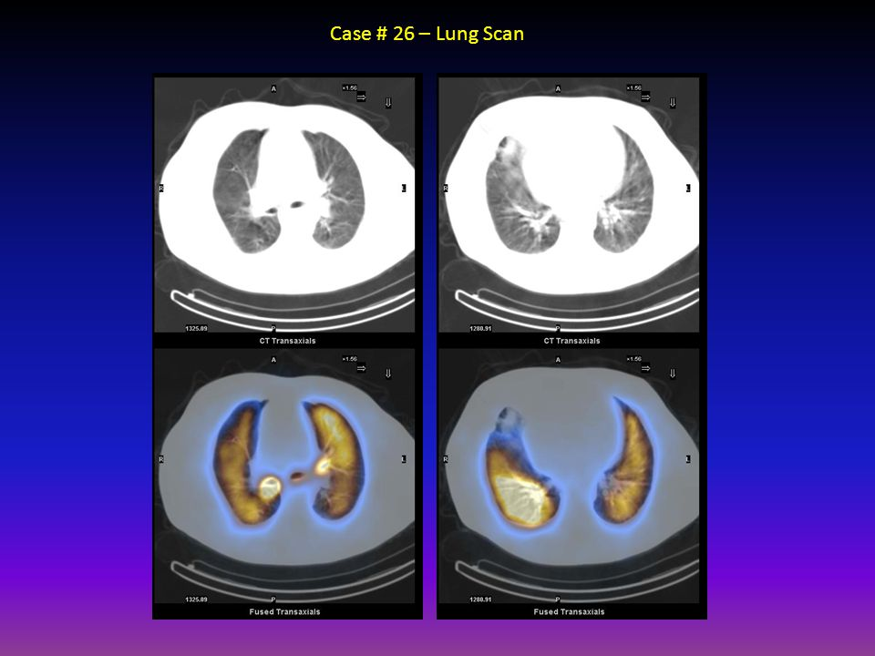 Case # 26 – Lung Scan