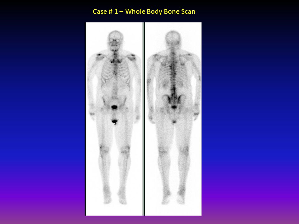 Case # 1 – Whole Body Bone Scan
