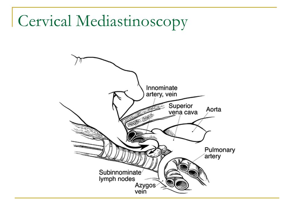 Cervical Mediastinoscopy