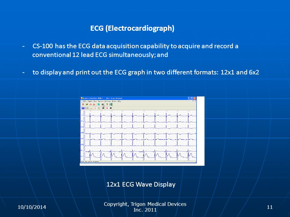 12x1 ECG Wave Display ECG (Electrocardiograph) - CS-100 has the ECG data acquisition capability to acquire and record a conventional 12 lead ECG simul