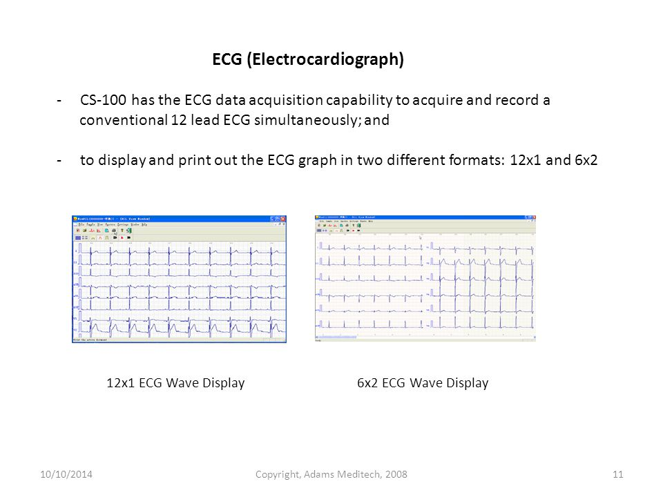 ECG (Electrocardiograph) - CS-100 has the ECG data acquisition capability to acquire and record a conventional 12 lead ECG simultaneously; and - to display and print out the ECG graph in two different formats: 12x1 and 6x2 10/10/2014Copyright, Adams Meditech, 200811 12x1 ECG Wave Display 6x2 ECG Wave Display