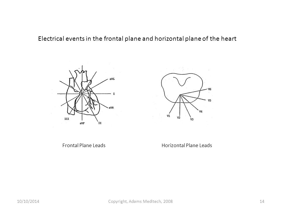 10/10/2014Copyright, Adams Meditech, 200814 Frontal Plane Leads Horizontal Plane Leads Electrical events in the frontal plane and horizontal plane of the heart