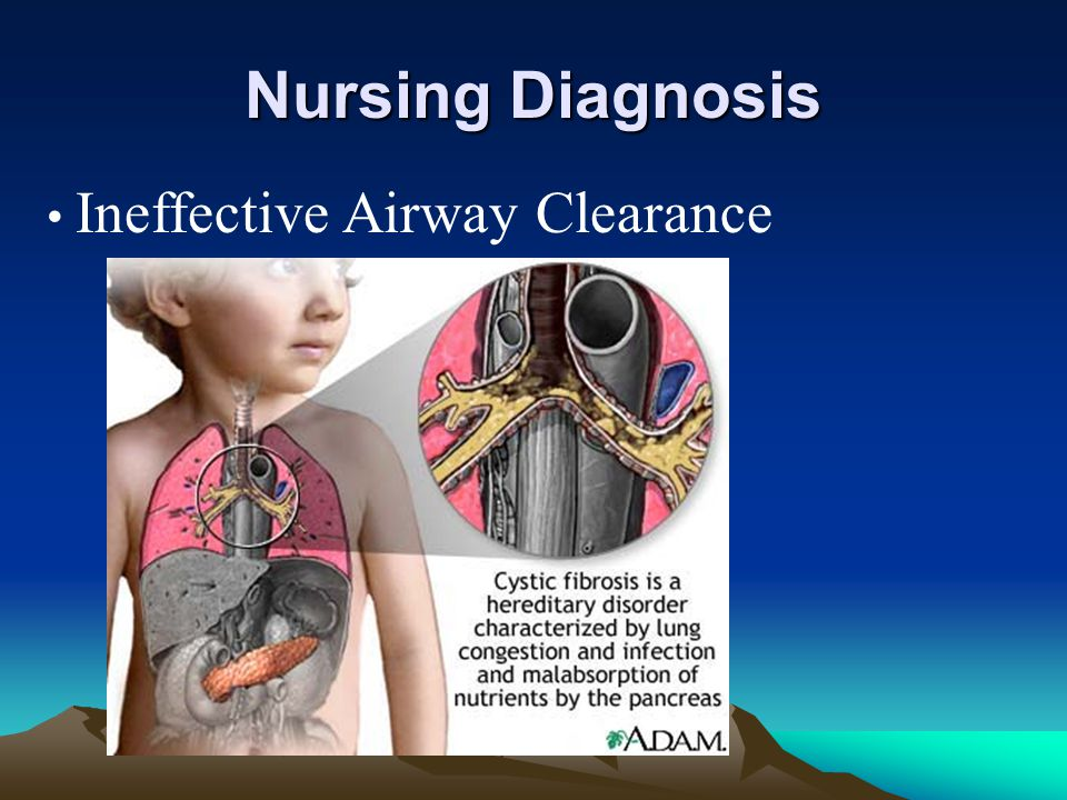 Nursing Diagnosis Ineffective Airway Clearance
