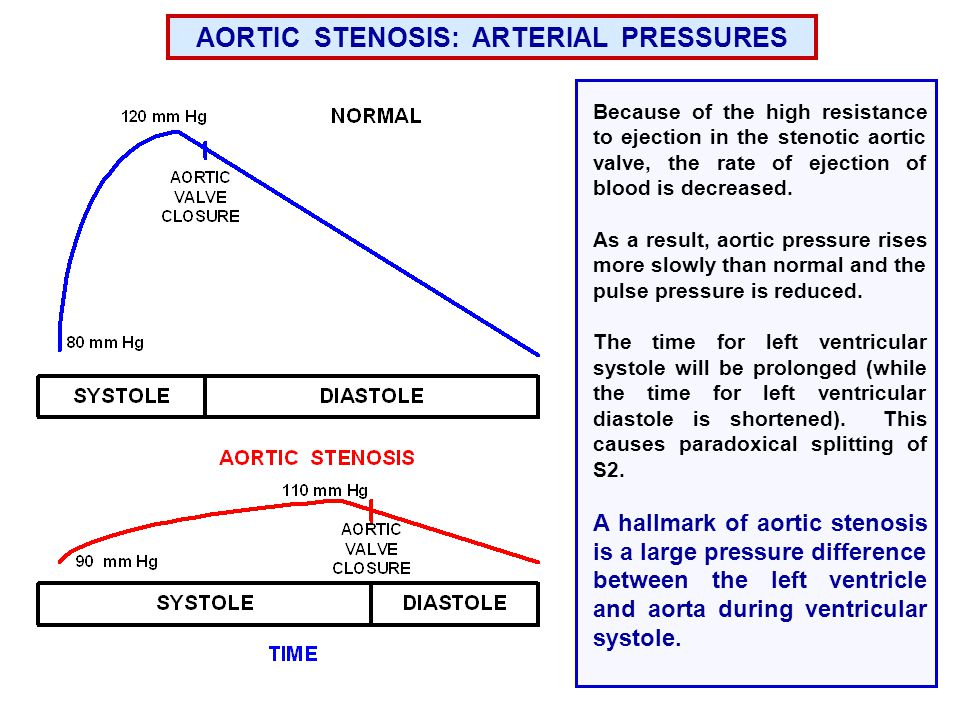 Because of the high resistance to ejection in the stenotic aortic valve, the rate of ejection of blood is decreased.