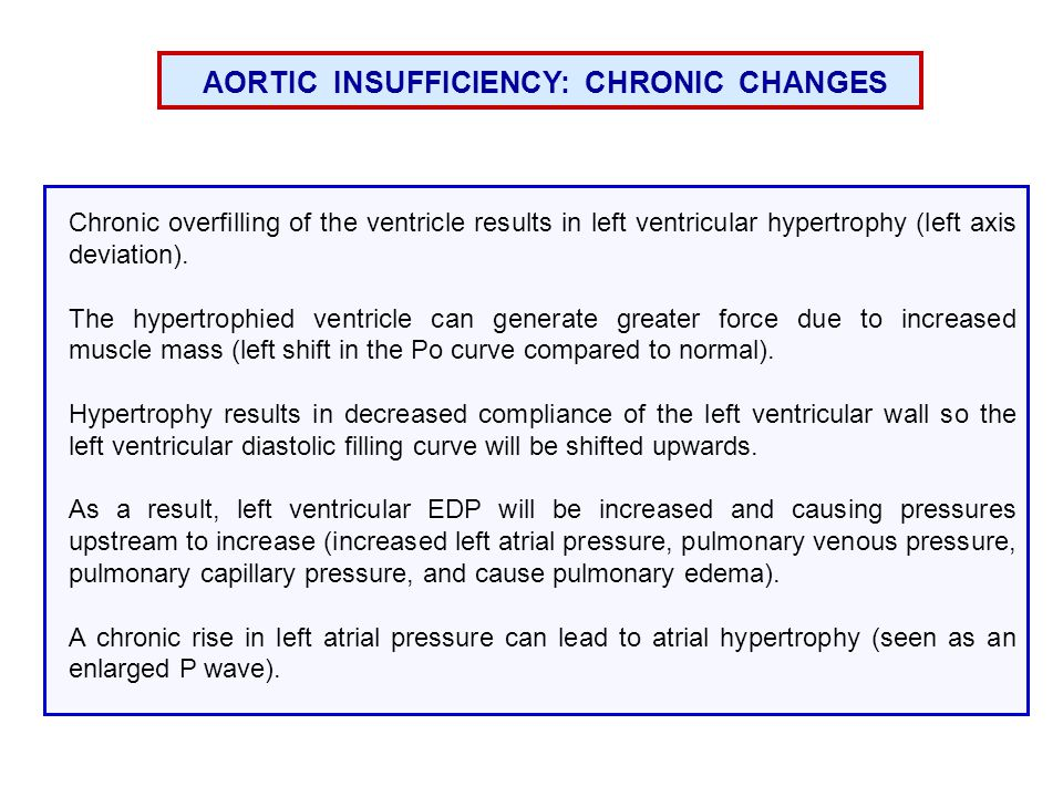 AORTIC INSUFFICIENCY: CHRONIC CHANGES Chronic overfilling of the ventricle results in left ventricular hypertrophy (left axis deviation).