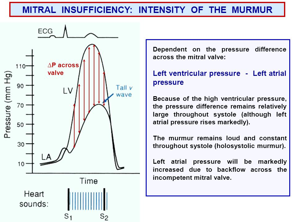 MITRAL INSUFFICIENCY: INTENSITY OF THE MURMUR Dependent on the pressure difference across the mitral valve: Left ventricular pressure - Left atrial pressure Because of the high ventricular pressure, the pressure difference remains relatively large throughout systole (although left atrial pressure rises markedly).