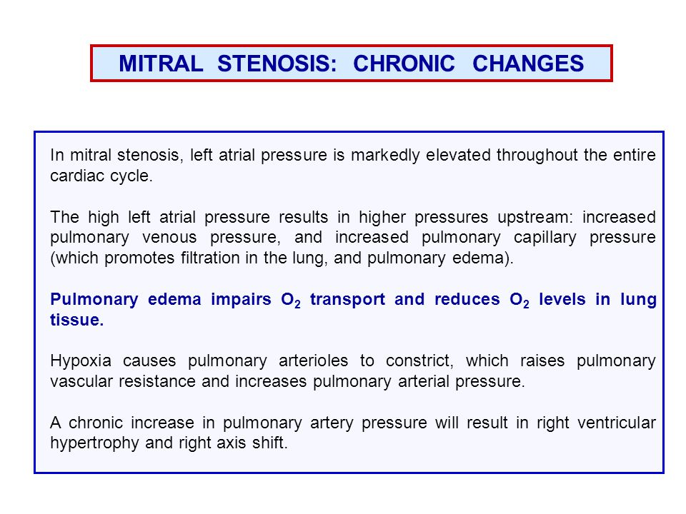 MITRAL STENOSIS: CHRONIC CHANGES In mitral stenosis, left atrial pressure is markedly elevated throughout the entire cardiac cycle.