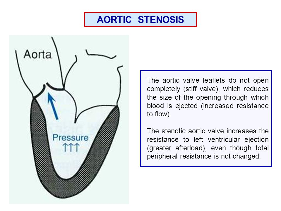 AORTIC STENOSIS The aortic valve leaflets do not open completely (stiff valve), which reduces the size of the opening through which blood is ejected (increased resistance to flow).