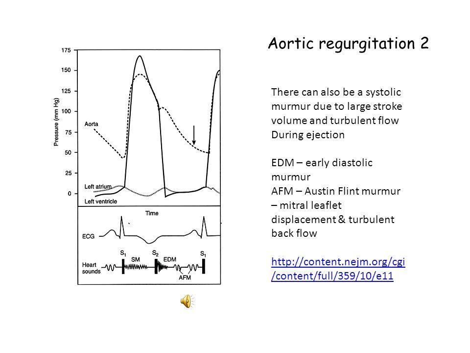 Aortic regurgitation 1 Diastolic decrescendo murmur Pressure gradient = aortic pressure - left ventricular Pressure Pressure gradient decreases during