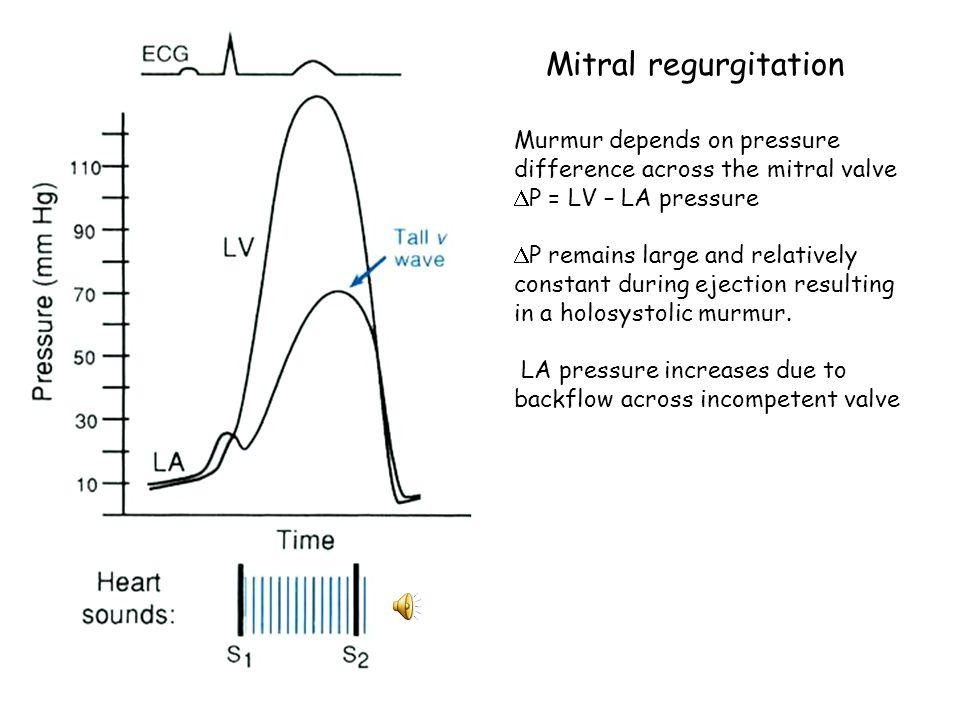 Aortic stenosis Murmur intensity depends on pressure gradient across aortic valve; LV pressure – aortic pressure.  P increases, then decreases, resul