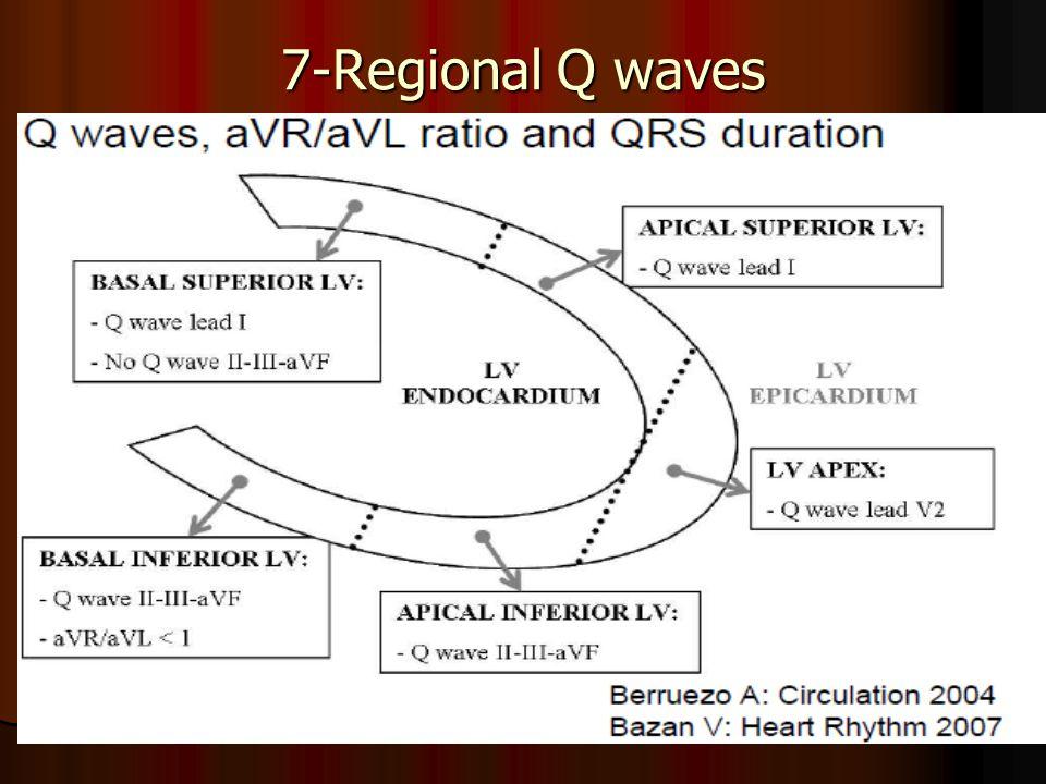 7-Regional Q waves