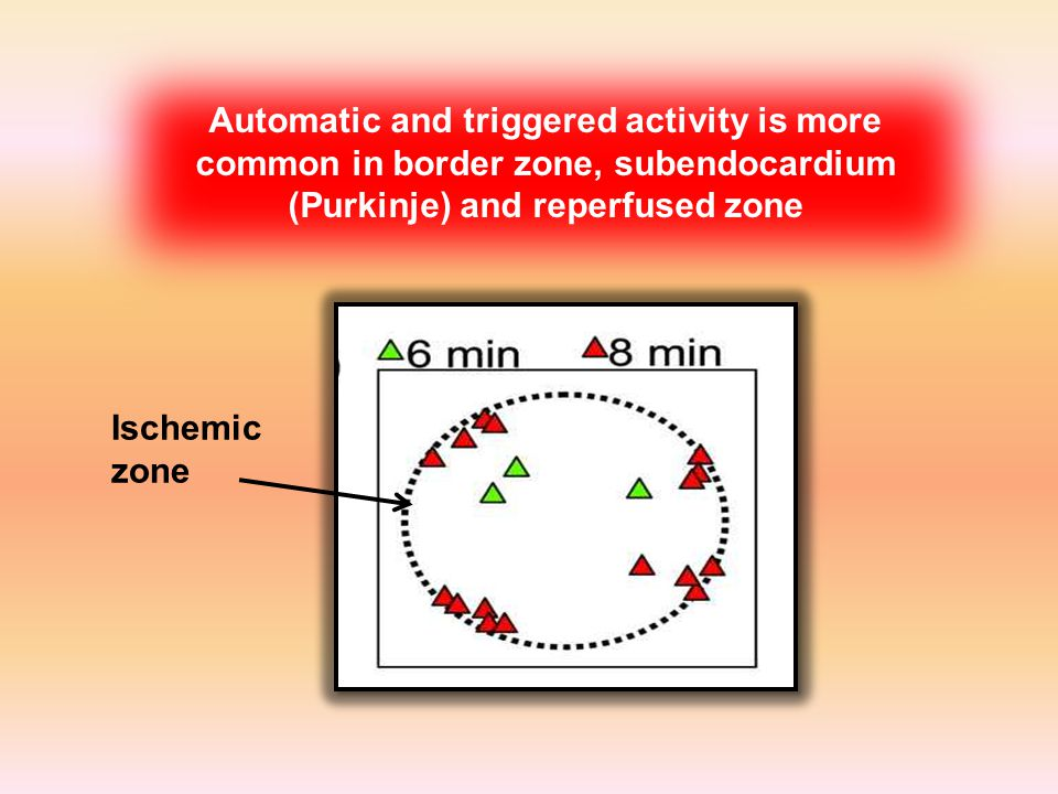 Ischemic zone Automatic and triggered activity is more common in border zone, subendocardium (Purkinje) and reperfused zone