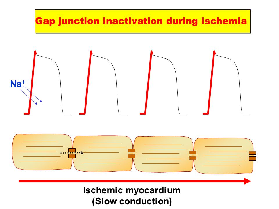 Gap junction inactivation during ischemia Na + Ischemic myocardium (Slow conduction)