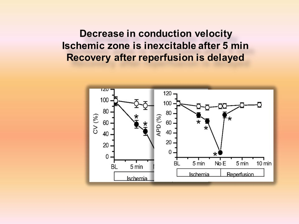 Decrease in conduction velocity Ischemic zone is inexcitable after 5 min Recovery after reperfusion is delayed Decrease in conduction velocity Ischemic zone is inexcitable after 5 min Recovery after reperfusion is delayed