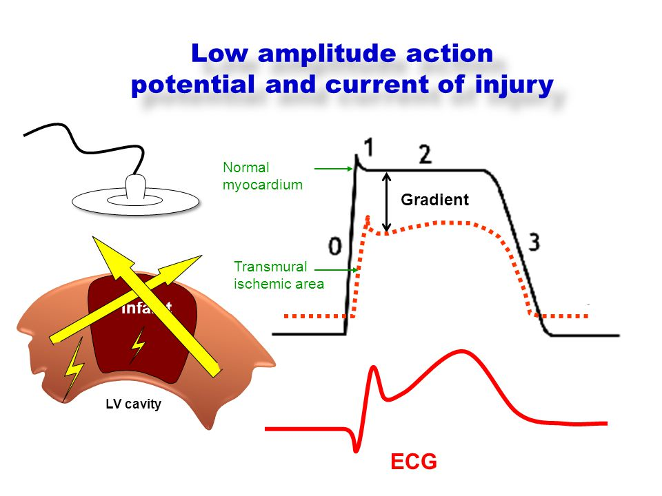 Gradient Normal myocardium Transmural ischemic area Infarct Low amplitude action potential and current of injury LV cavity ECG